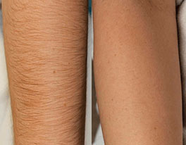 проблемы от бритья