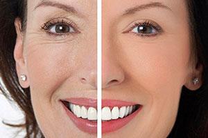 до и после применения препарата