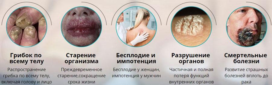 Последствия грибка