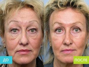 До и после применения капсул