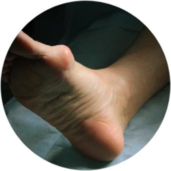 проблема с косточкой на ноге