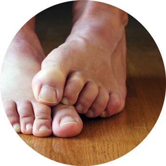 Зараженные ноги