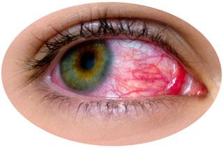 Глаз болен