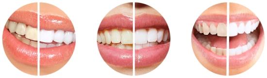 эффект отбеливания зубов